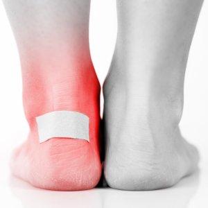 Лейкопластыри для сухих мозолей и натоптышей на ногах силиконовые для лечения и удаления