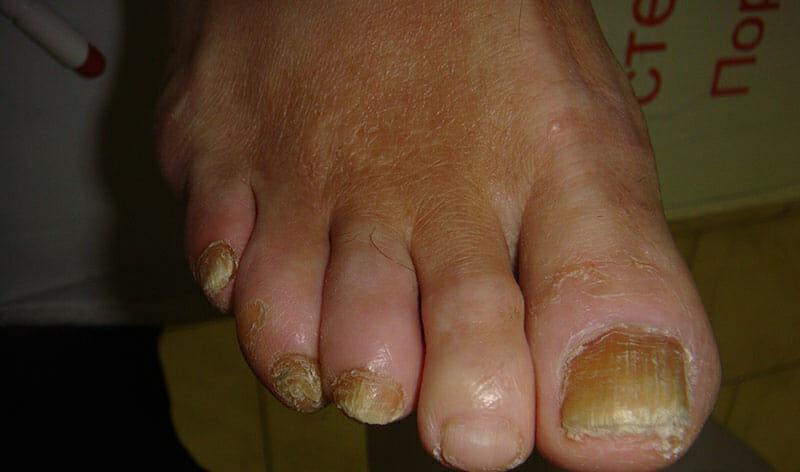 О чем говорит сухая кожа ног