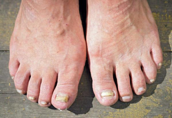 Как вылечить грибок ногтей на ногах уксусом народное средство