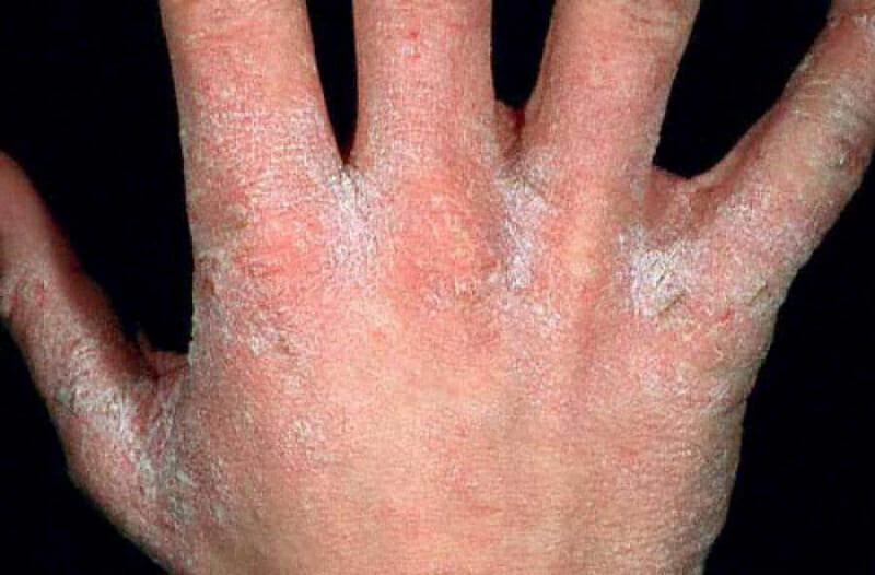 Покраснение и шелушение кожи между пальцами рук 34