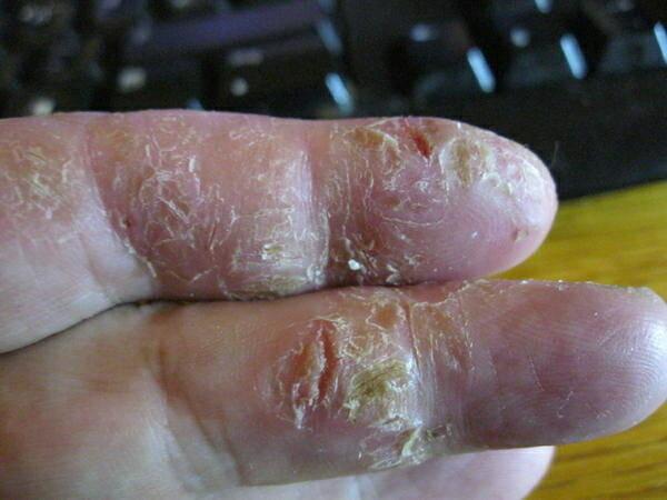 Покраснение и шелушение кожи между пальцами рук 39