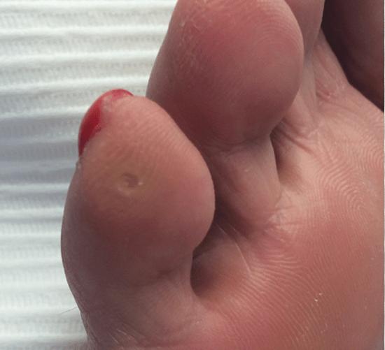 Что такое внутренний мозоль на мизинце ноги