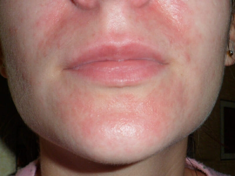 Чешется кожа лица причины и лечение thumbnail