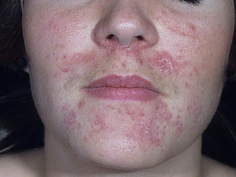 Сыпь возле глаз носа подбородок